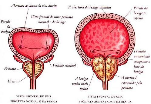 cancer prostata tratamento injeção